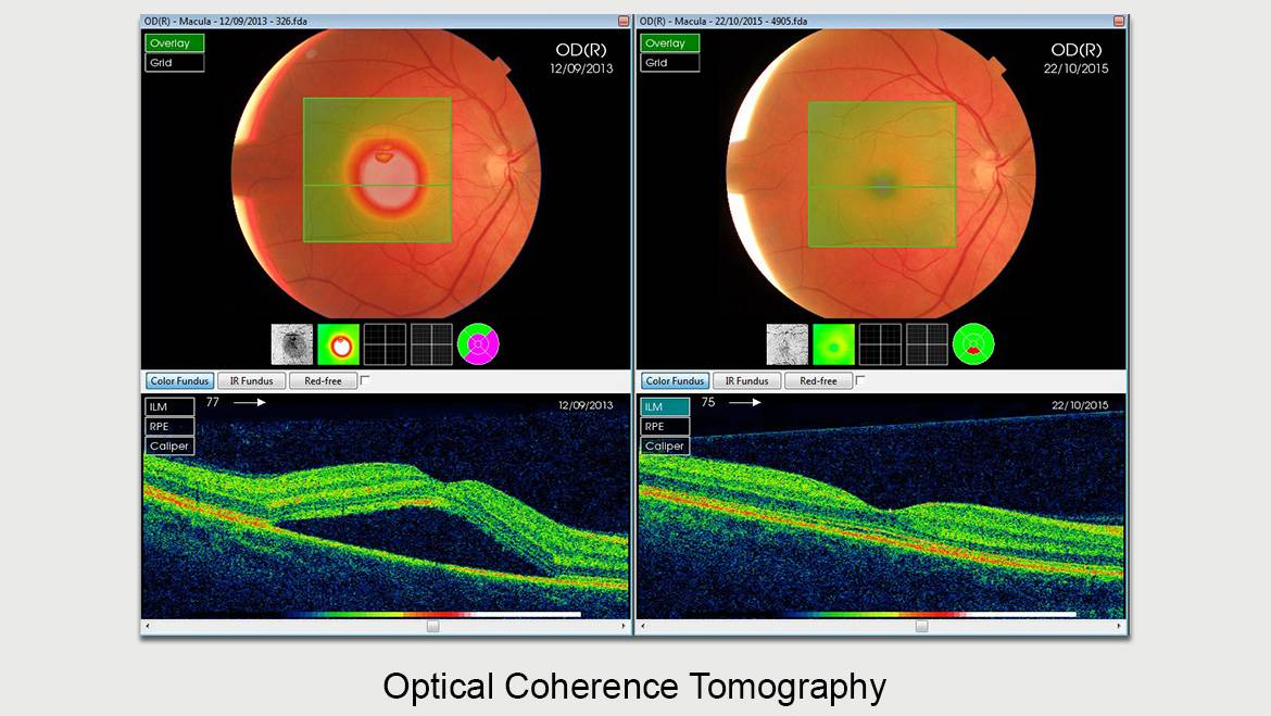 china optical coherence tomographyoct industry 2013 market The optical coherence tomography (oct) industry is divided by  china and japan are leading the asia-pacific  global oct market by technology, 2013.